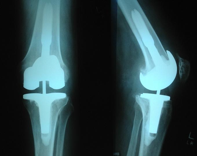 Количество эндопротезирований коленного сустава в сша гипотиреоз боли в суставах